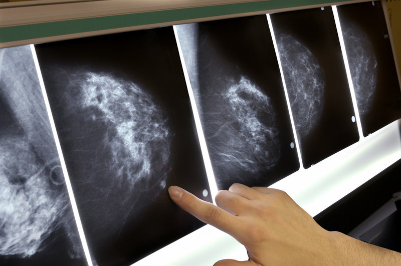 mammografie intelligenza artificiale natural language processing lotta al cancro